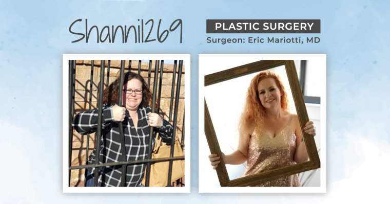 Before & After Plastic Surgery with Shanni1269