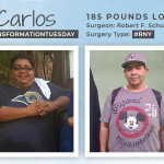 Before & After RNY with Carlos, down 185 pounds!