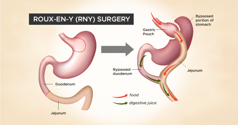 How a Stomach is Rearranged in RNY Surgery