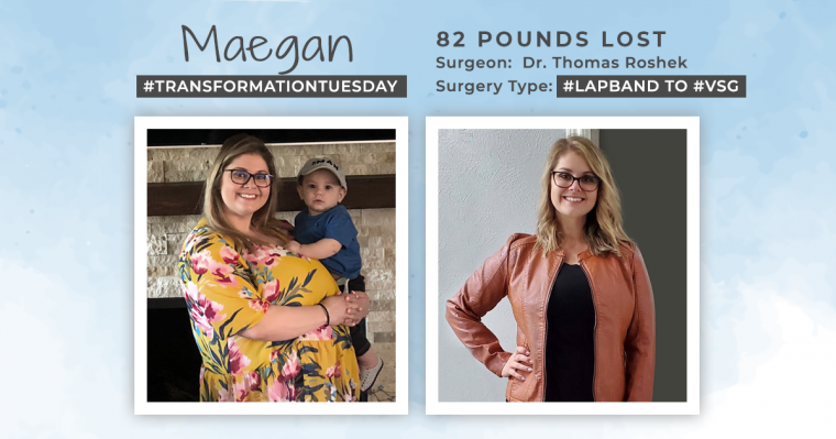 Before & After a Revision of Lap-Band to VSG with Maegan