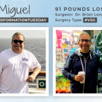 Before & After VSG with Miguel, down 91 pounds!
