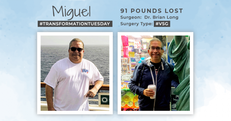 Before & After VSG with Miguel