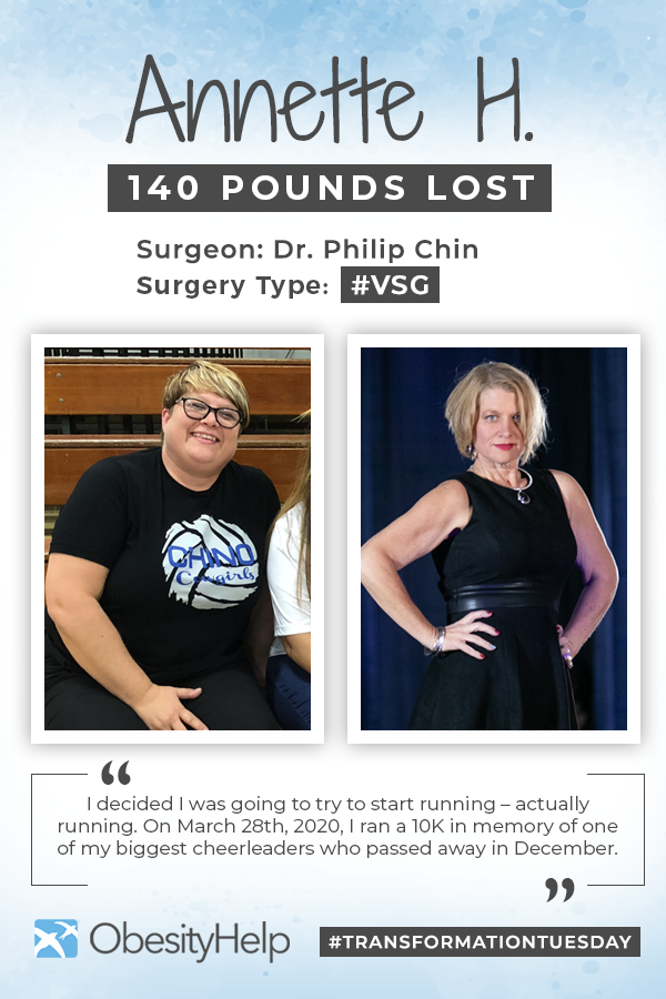 Pinterest Before & After VSG with Annette H