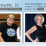 Before & After VSG with Annette H., down 140 pounds!