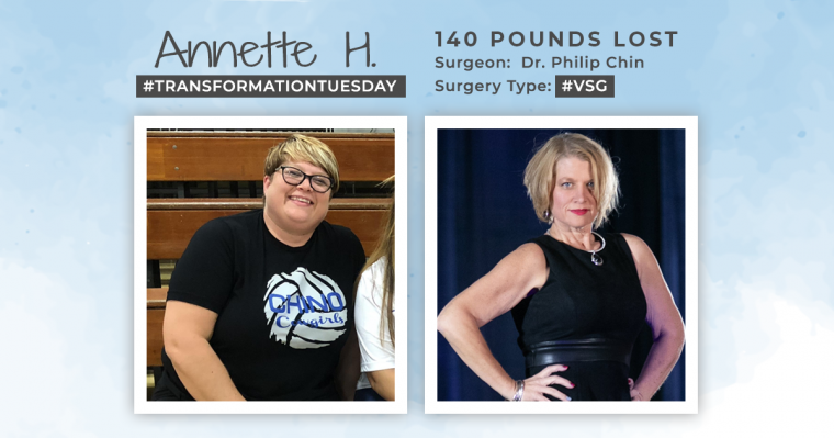 Before & After VSG with Annette H