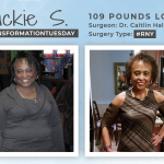 Before & After RNY with Jackie S., down 109 pounds!