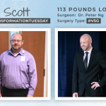 Before & After VSG with Scott, down 113 pounds!