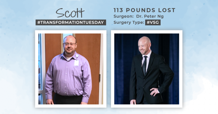 Before & After VSG with Scott