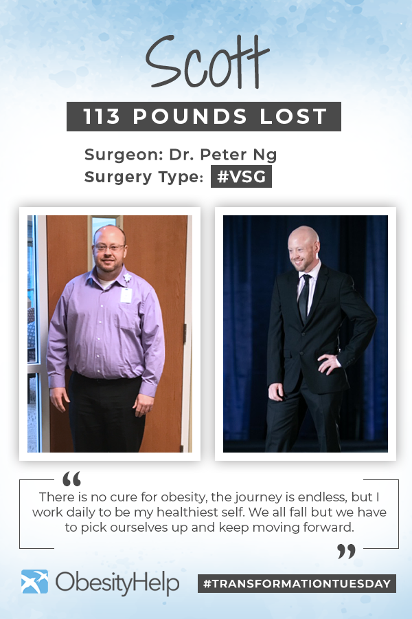 Pinterest Before & After VSG with Scott