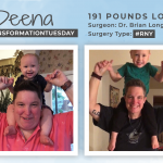 Before & After RNY with Deena, down 191 pounds!