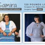 Before & After RNY with Samira, down 120 pounds!