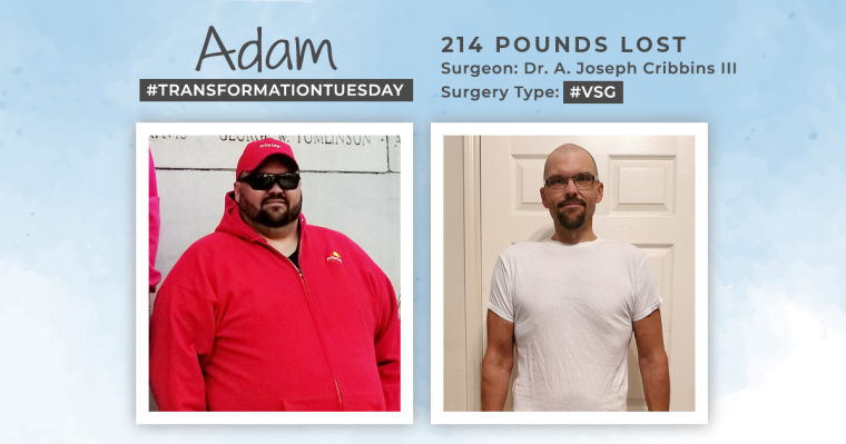Blog Before and After VSG with Adam 1