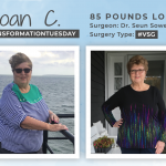 Before & After VSG with Joan, down 85 pounds!