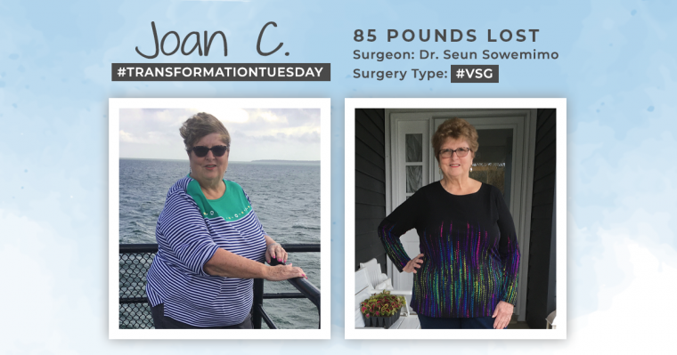 Before & After RNY with Joan, down 85 pounds 2
