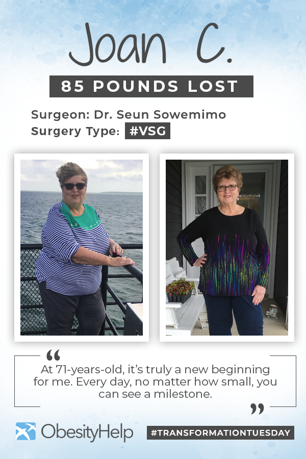 Before & After RNY with Joan, down 85 pounds