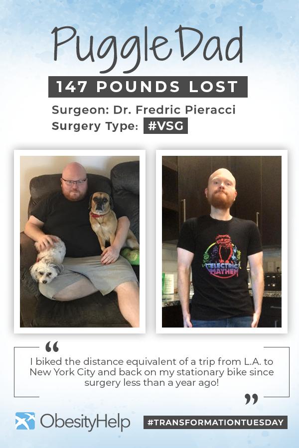 Before & After VSG with PuggleDad