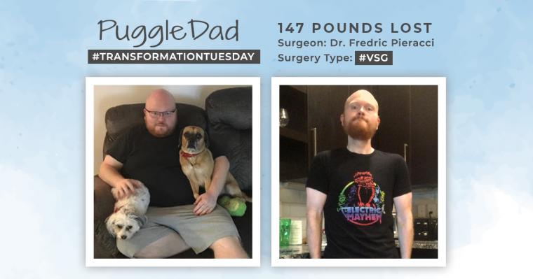Blog Before & After VSG with PuggleDad
