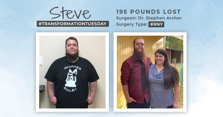 Blog Before & After RNY with Steve