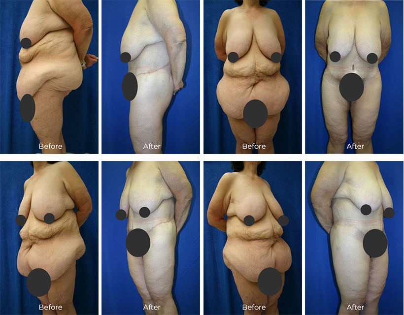 Plastic Surgery Improves