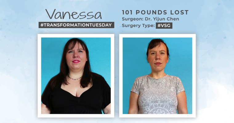Blog Before & After VSG with vanessa