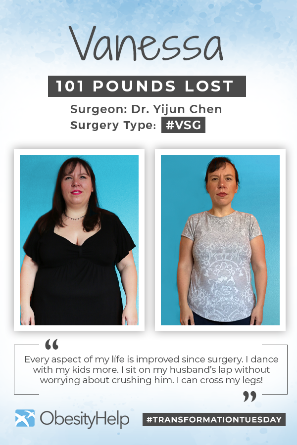 Before & After VSG with Vanessa