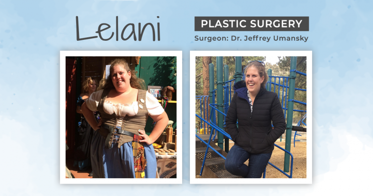 Blog Before & After Plastic Surgery with Lelani