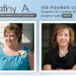 Before & After RNY with Cathy A, down 150 pounds!