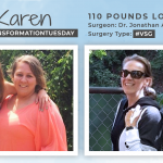 Before & After VSG with Karen Mack, down 110 pounds!
