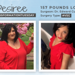 Before and After VSG with Desiree, down 157 pounds!