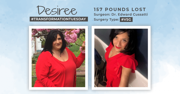 Before and After VSG with Desiree