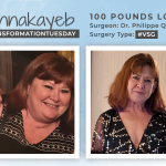Before & After VSG with Donnakayeb, down 100 pounds!