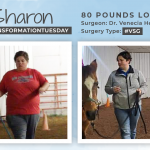 Before & After VSG with Sharon, down 80 pounds!