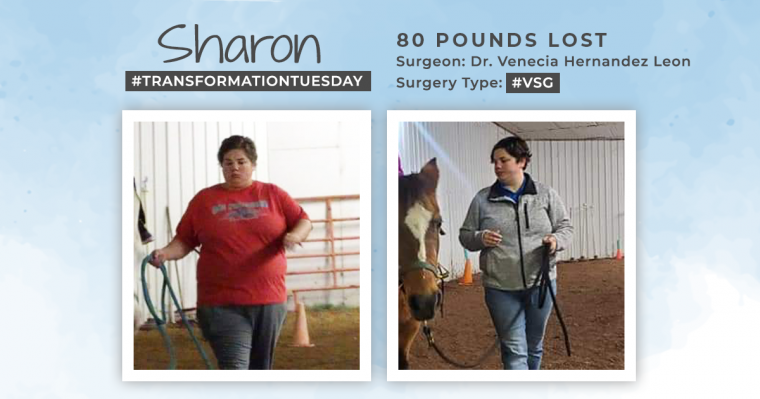 Before & After VSG with Sharon