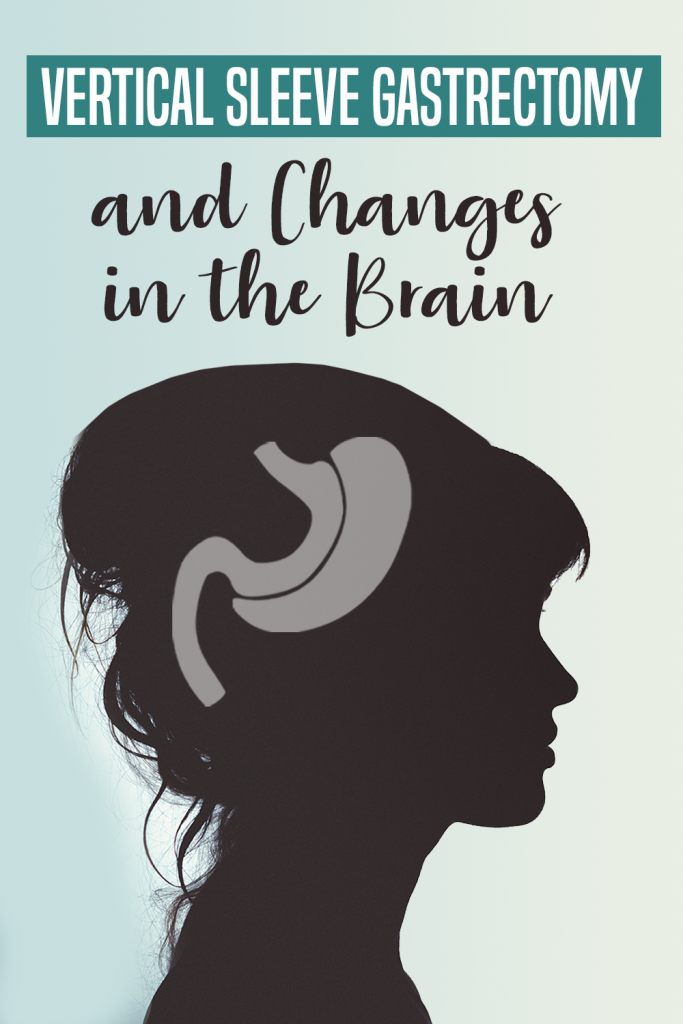 VSG and Changes in the Brain