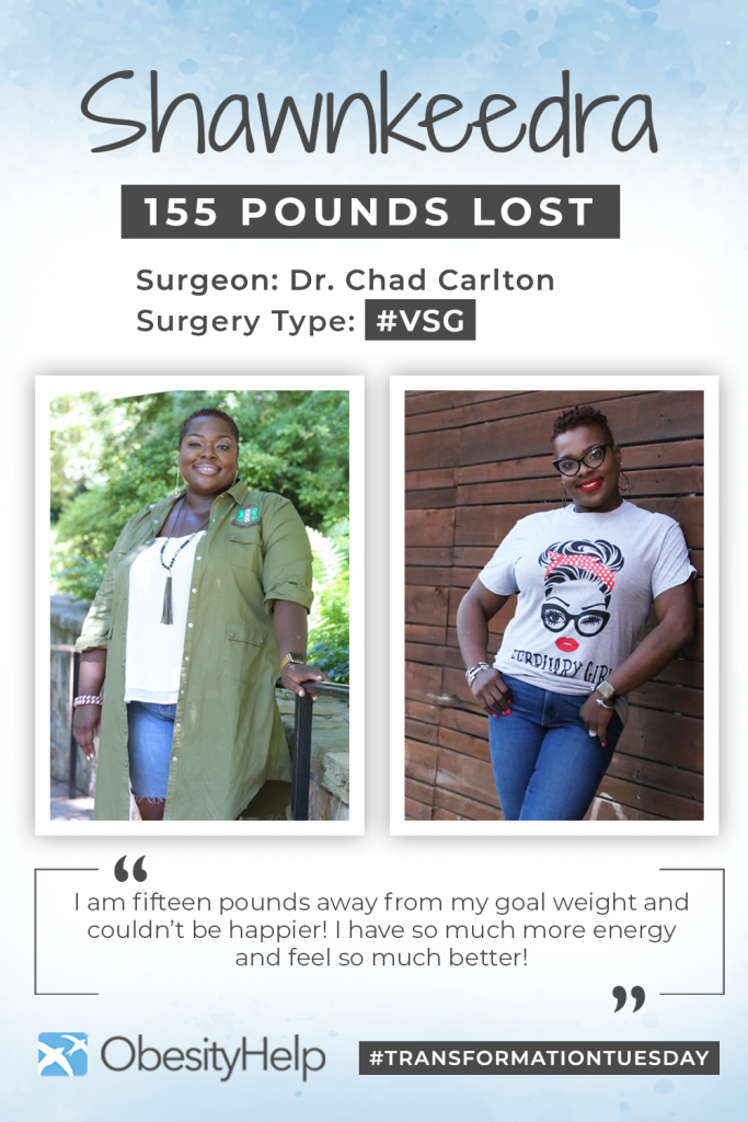 Before & After VSG with Shawnkeedra