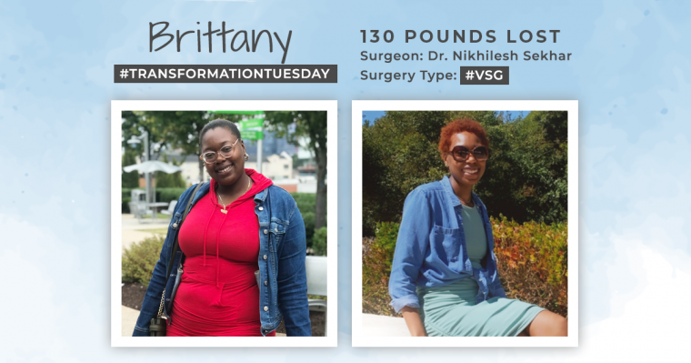 Before and After VSG with Brittany