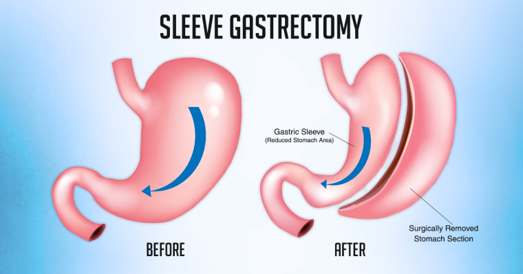 after the sleeve gastrectomy
