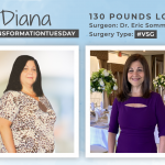 Before and After VSG with Diana, down 130 Pounds!