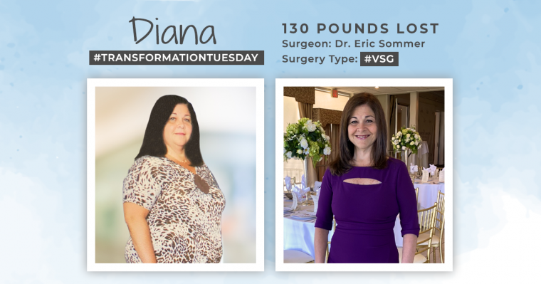 Before and After VSG with Diana