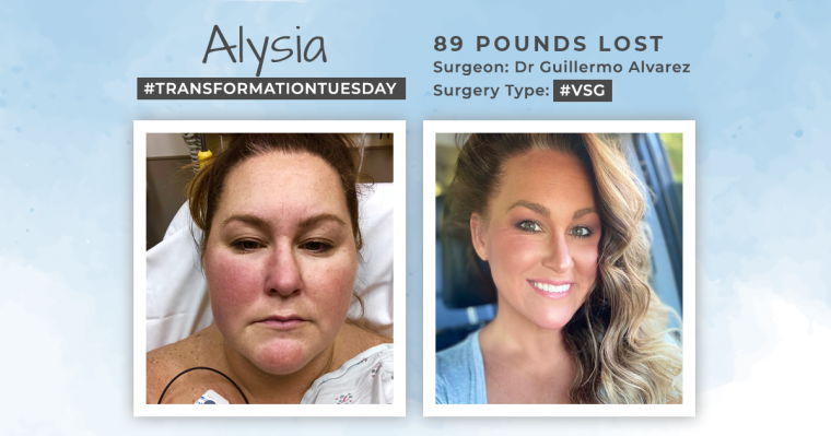 Before and After VSG with Alysia